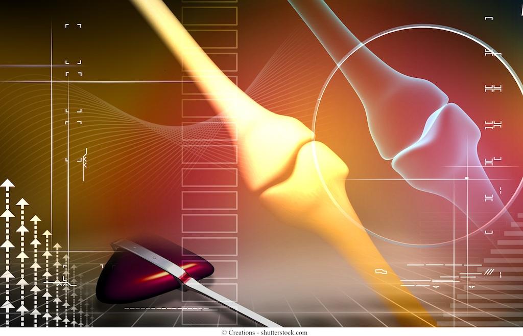 Artroscopia del ginocchio