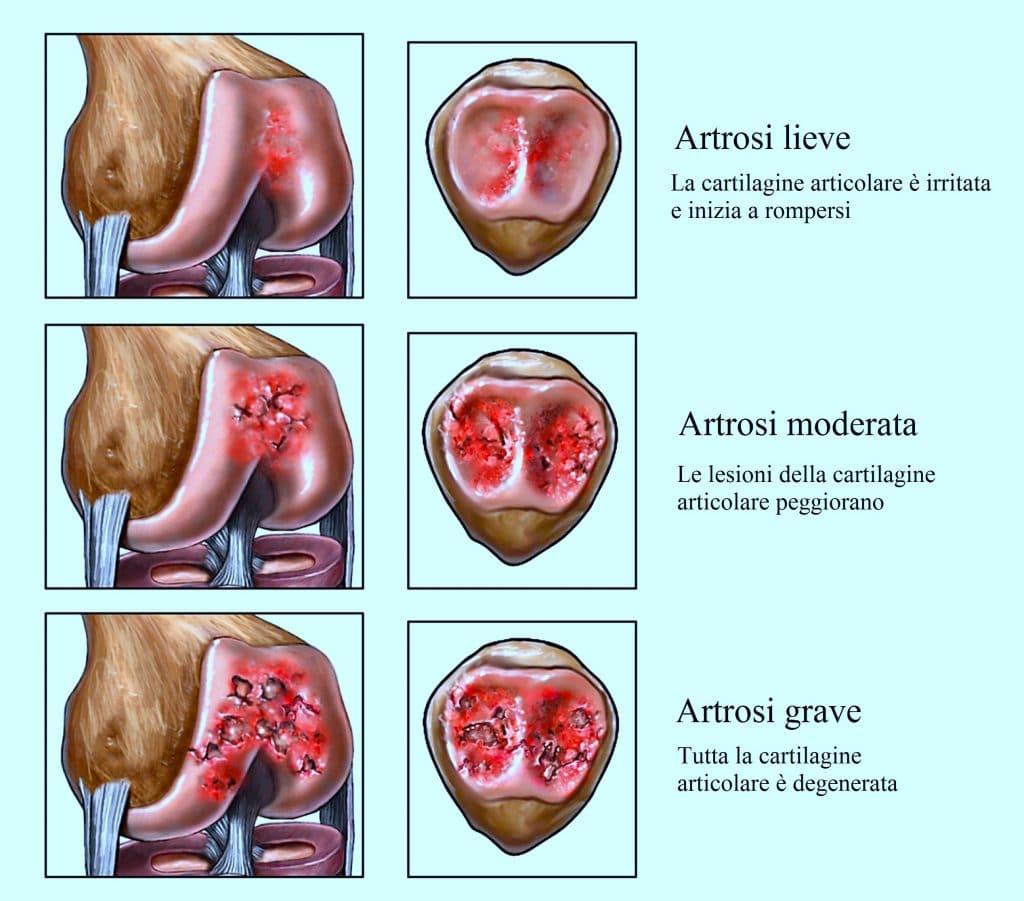 Artrosi al ginocchio, secondaria