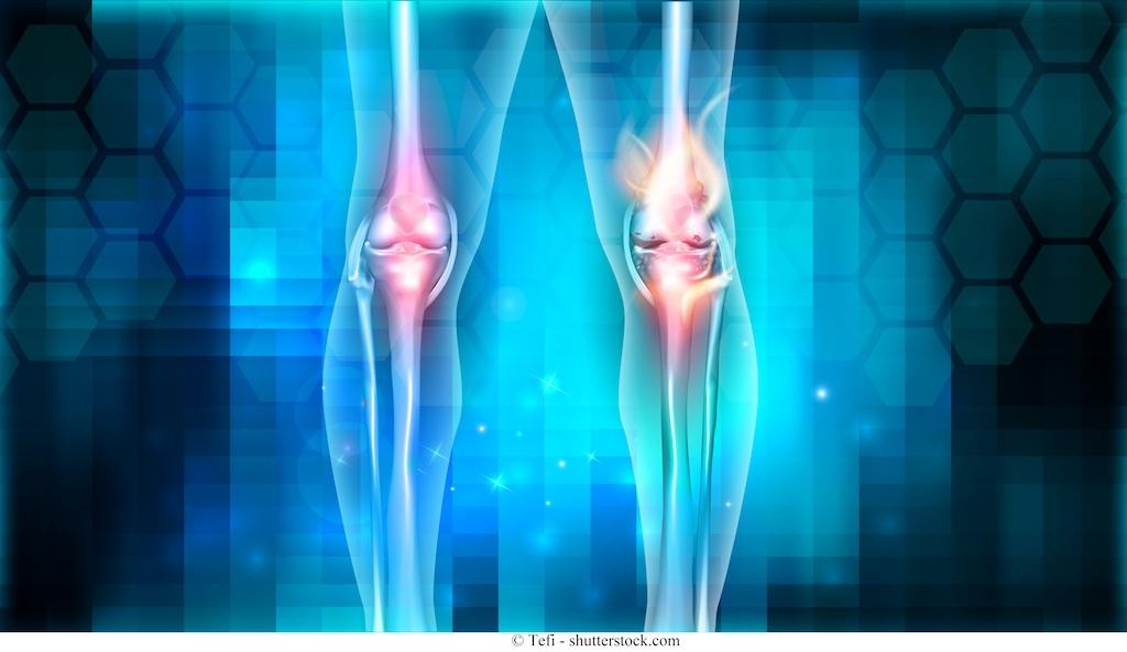 Cause dell'artrosi al ginocchio