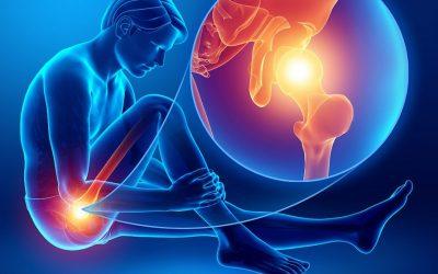 Conflitto Femoro-Acetabolare: Sintomi e Fisioterapia