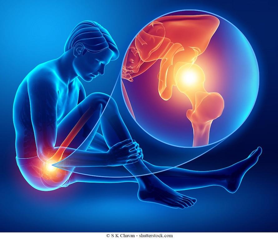 Conflitto Femoro-Acetabolare