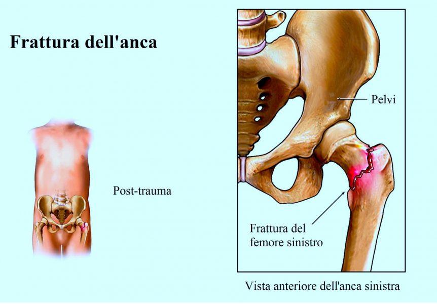 Frattura del collo del femore