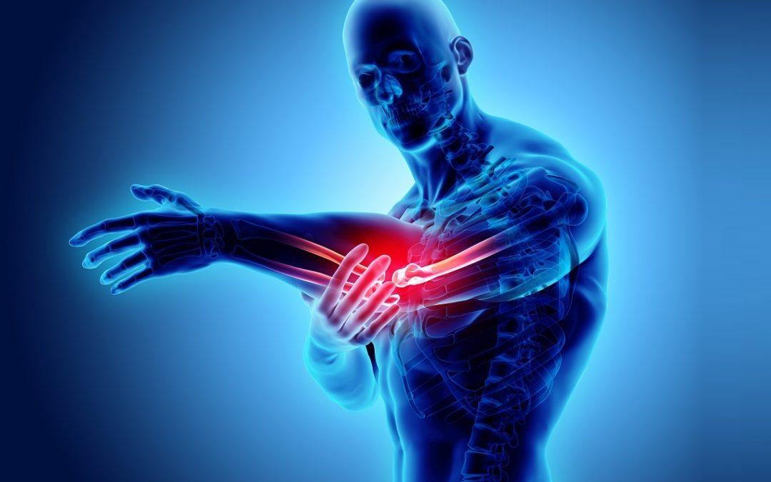 Neuropatia del nervo ulnare e radiale