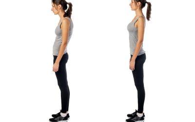 Postura eretta con deficit muscolari