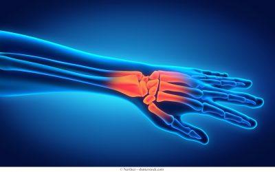 Artrosi del Pollice (Rizoartrosi): i Sintomi e la Terapia più Efficace