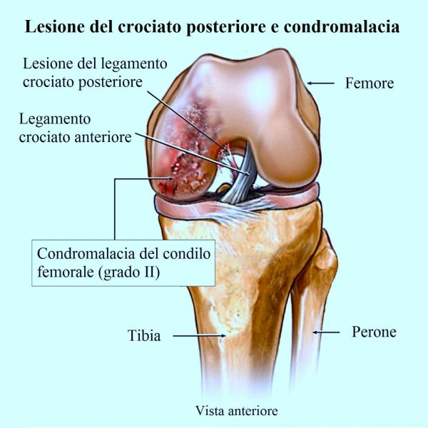 Rottura del crociato posteriore,cartilagine,ginocchio