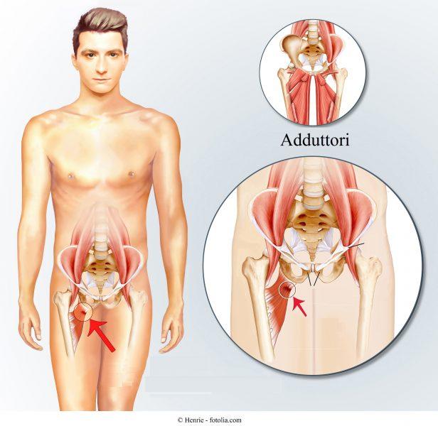 adduttori, lesione muscolare