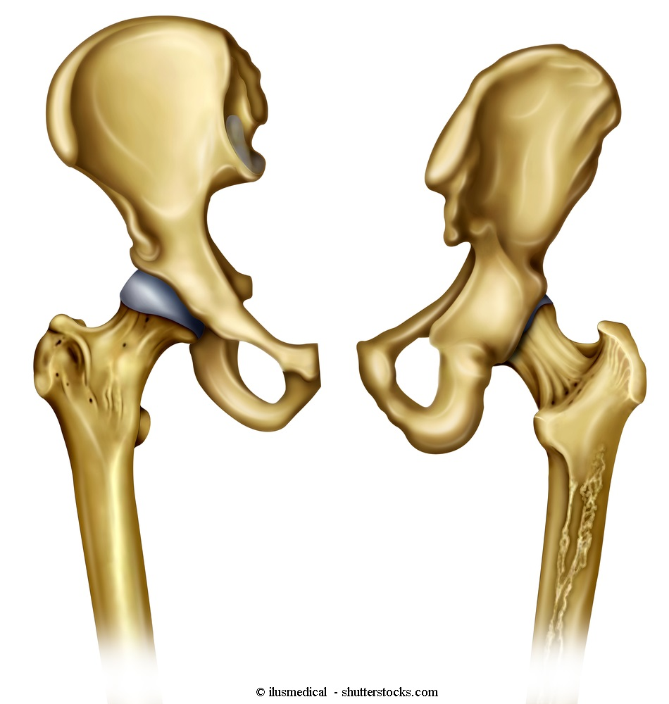 anca, bacino, anatomia