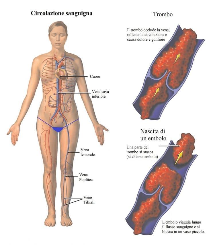 Embolia polmonare,trombosi,trombo,coagulo