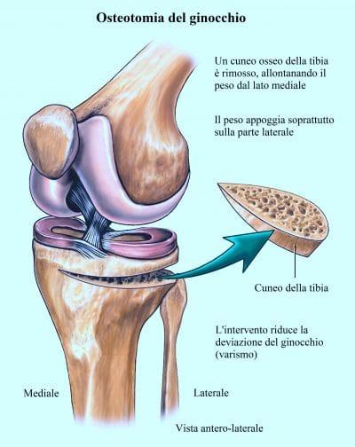 osteotomia del ginocchio,artrosi,valgo,varo