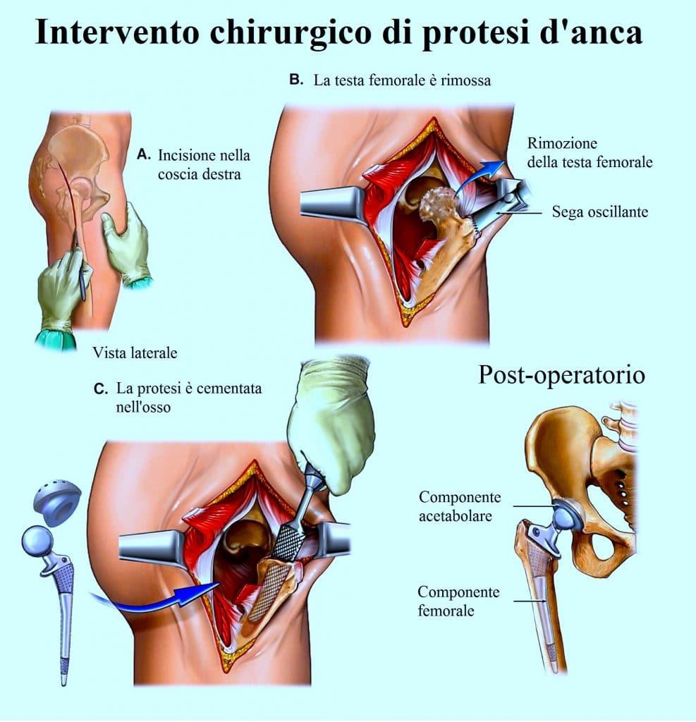 Protesi-d-anca,operazione chirurgica