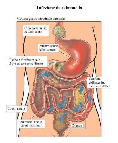 Salmonella,tifo,batteri,infezione intestinale