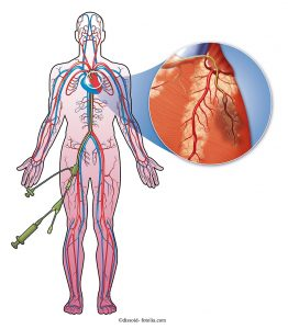 Cuore-catetere-stent