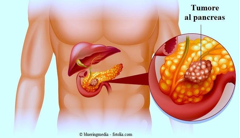 tumore, pancreas, testa