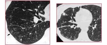 TUBERCOLOSI-miliare-tac-tubercolomi