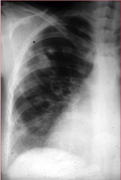 Radiografia,polmonite,fungina,aspergillo