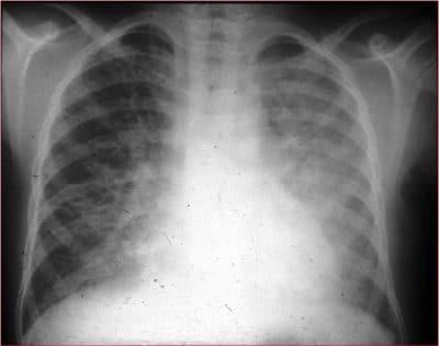 pneumonie interstitielle aiguë, consolidation, poumon, droit, gauche