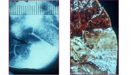 polmonite,lobare,radiografia,istologia,sezione del polmone