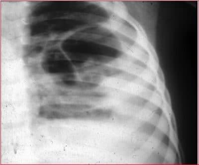 radiografia torace, polmonite alveolare