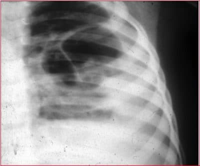 radiographie du thorax, pneumonie alvéolaire
