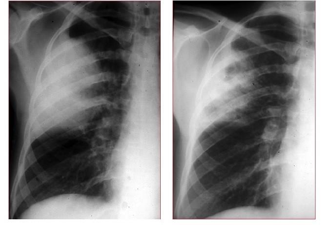 radiografia del torace,opacità,lobo superiore sinistro