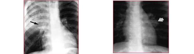radiografia, tubercolosi,apice sinistro