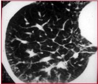 tac,polmonite,interstiziale-opacita reticolare,linee kerley-
