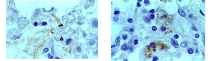 tubercolosi,esame di laboratorio,micobatteri