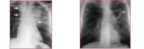tubercolosi,radiografia,linfonodi ingrossati