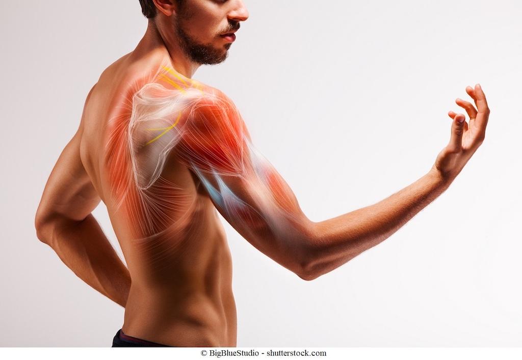 Dolore alla spalla laterale e al braccio