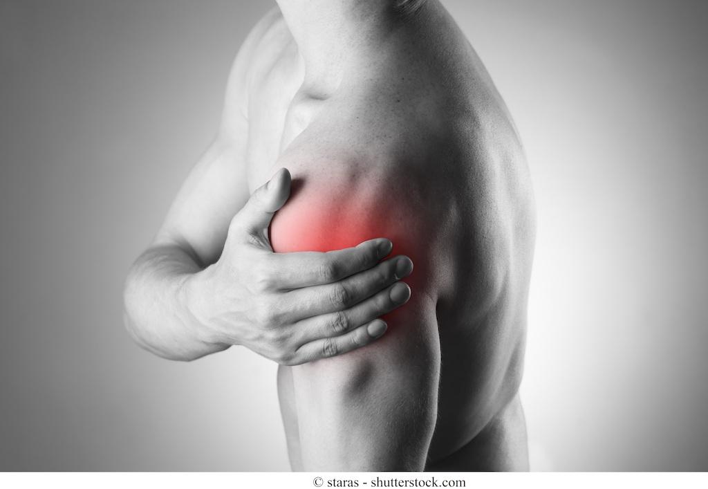 Instabilità della spalla o sublussazione - sintomi e intervento