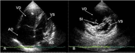 ecocardiogramma,embolia polmonare