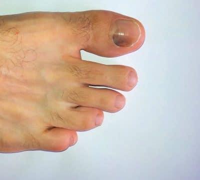 unghia nera,ematoma,trauma