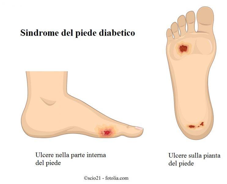 Piede-diabetico-ulcera