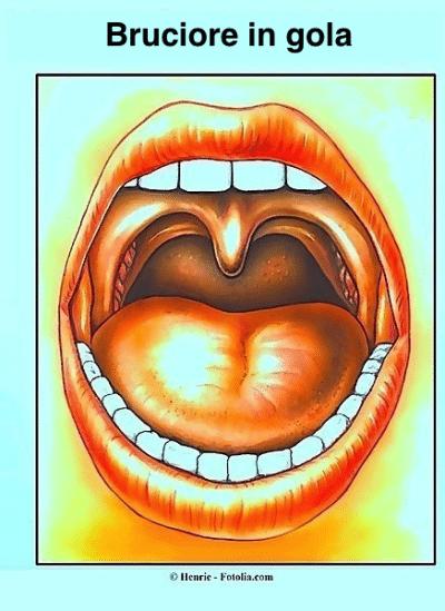 Bruciore di gola rimedi naturali cause da reflusso o in for Bruciore alla schiena in alto