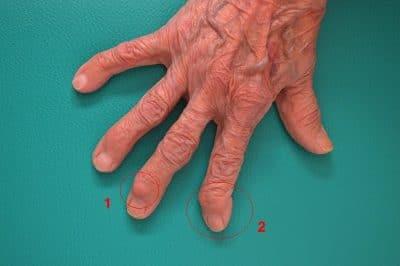 artrosi,dita,mano,nodulo,heberden,deviazione,falangetta