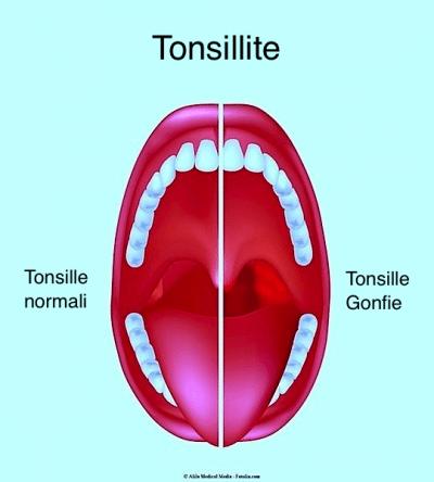 Tonsille,ingrossate,infiammate