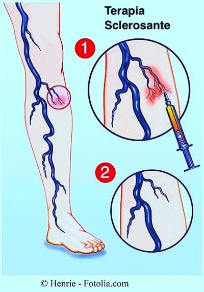 Scleroterapia,vene varicose