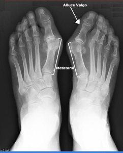 Radiografia di alluce valgo, diagnostica per immagini, esame