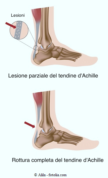 Rottura del tendine d'Achille