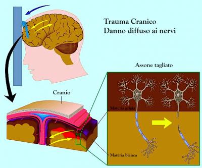 Trauma cranico - sintomi conseguenze e terapia