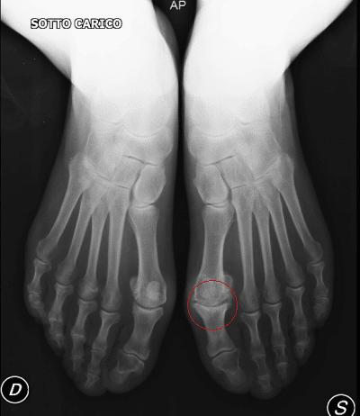 alluce,rigido,dolore,movimento,limitazione,metatarso,osso,artrosi