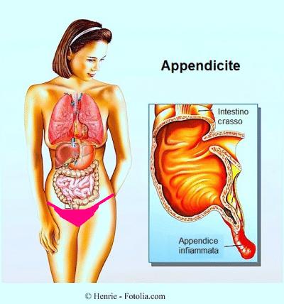appendicite,infiammazinoe dell'appendice
