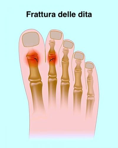 Frattura,dita,piede,dolore,ossa,appoggio,carico
