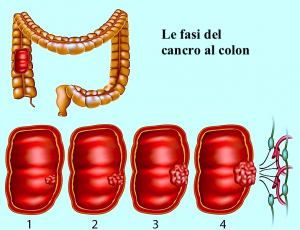 tumore,colon,intestino,cancro,dolore,diffusione,dimensione,lesione