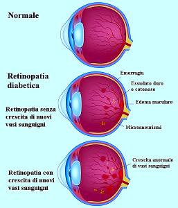 retinopatia,diabetica,proliferativa,microaneurismi