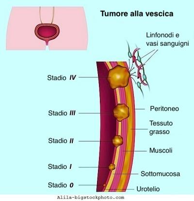 Tumore alla vescica,cancro