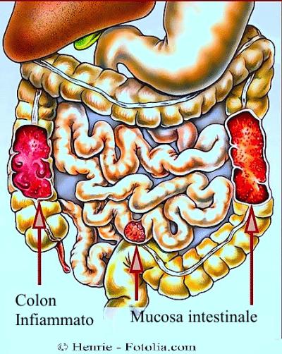 Colon infiammato - cause, sintomi e rimedi