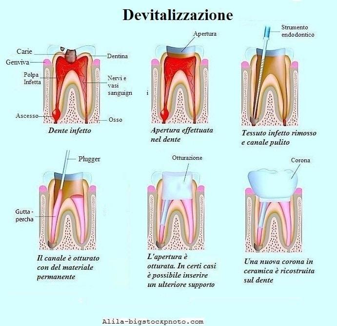 dente devitalizzato e devitalizzazione