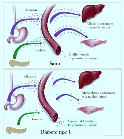 Diabete di tipo I